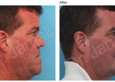 Patient 2, Orthognathic Surgery Photo Gallery