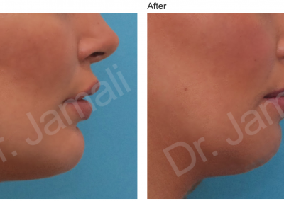 Patient 2, Chin Augmentation Photo Gallery