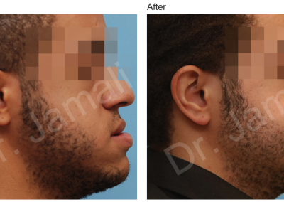 Patient 3, Orthognathic Surgery Photo Gallery