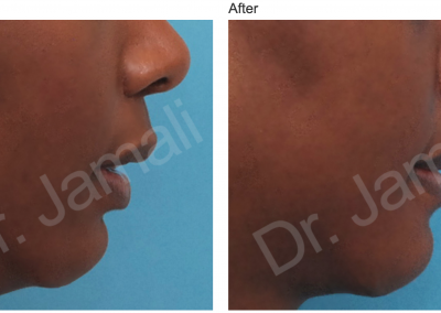 Patient 3, Chin Augmentation Photo Gallery