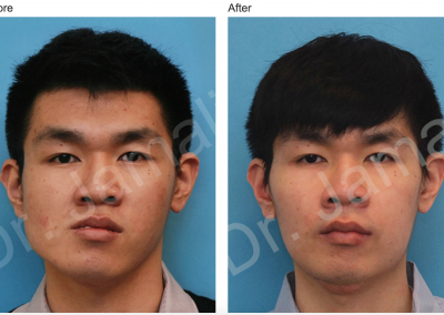 Patient 4, Orthognathic Surgery Photo Gallery