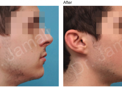 Patient 5, Chin Augmentation Photo Gallery