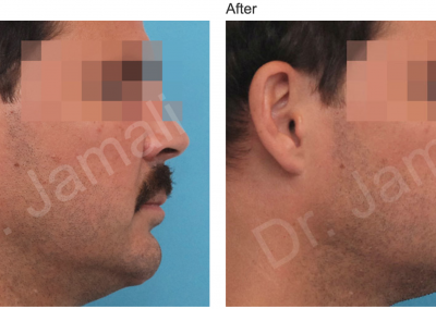 Patient 6, Chin Augmentation Photo Gallery