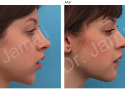 Patient 7, Chin Augmentation Photo Gallery