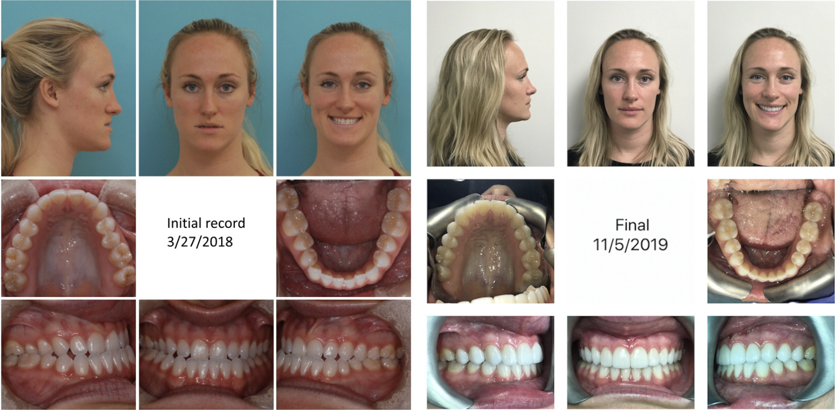 Before And After Sliding Genioplasty