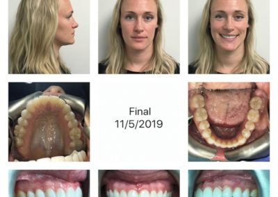 Patient 1, Sliding Genioplasty Photo Gallery