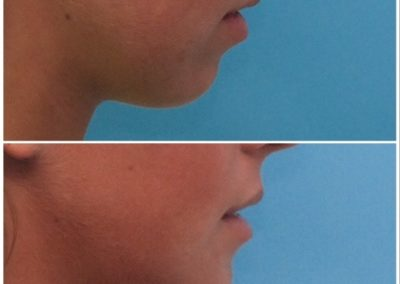Chin Advancement / Sliding Genioplasty – 10