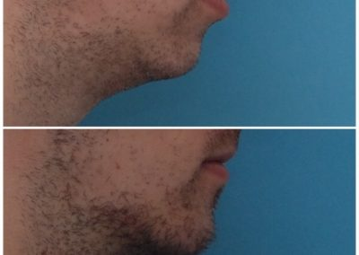 Chin Advancement / Sliding Genioplasty – 11