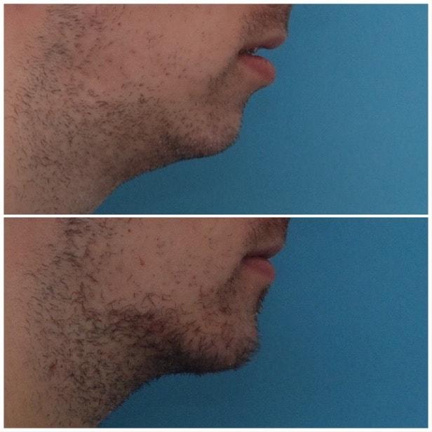 Chin Advancement / Sliding Genioplasty