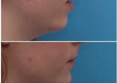 Chin Advancement / Sliding Genioplasty – 12