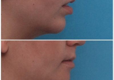 Chin Advancement / Sliding Genioplasty – 13