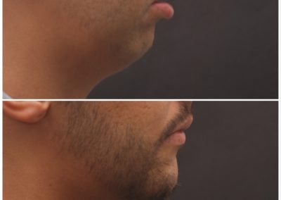 Chin Advancement / Sliding Genioplasty – 5