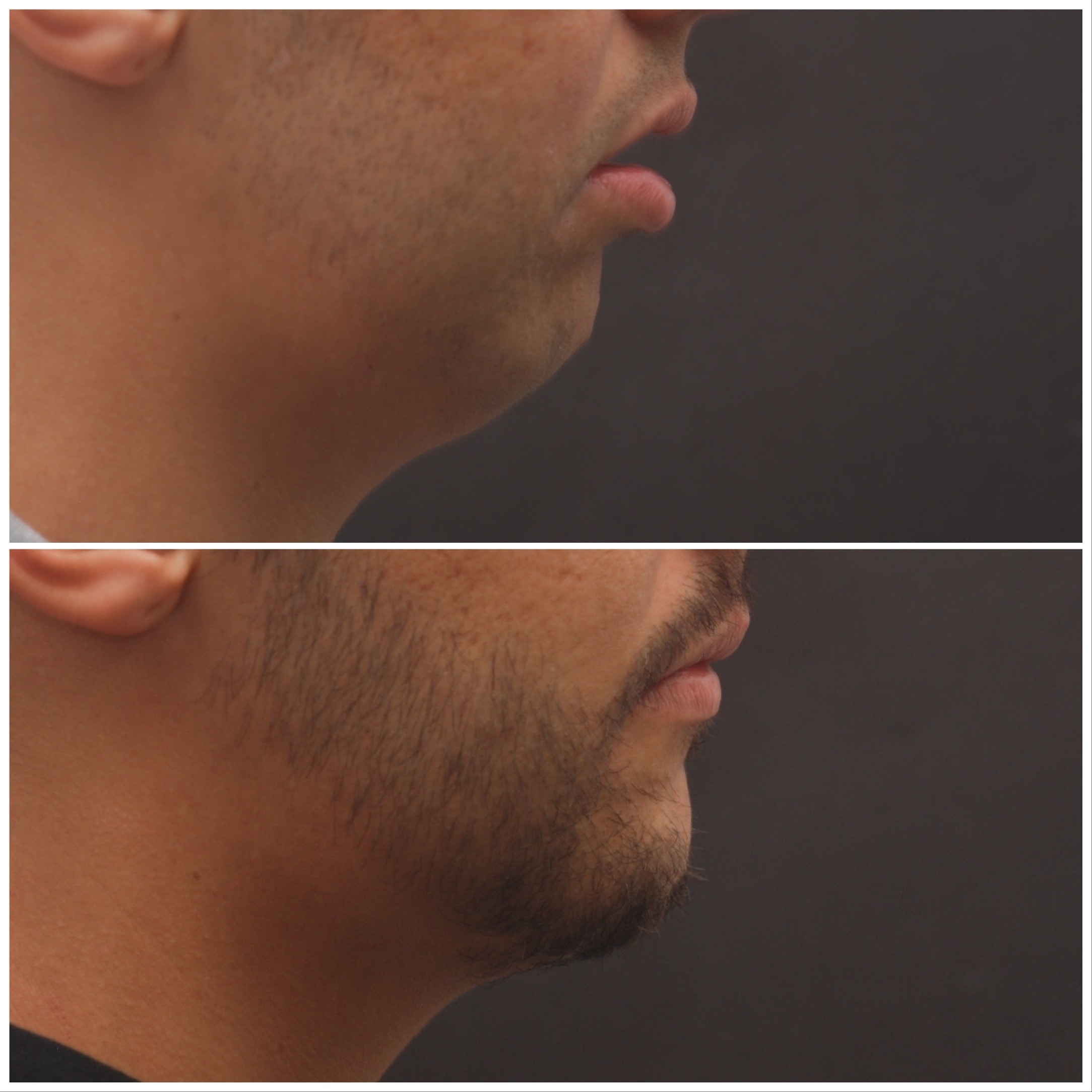 Chin Advancement / Sliding Genioplasty