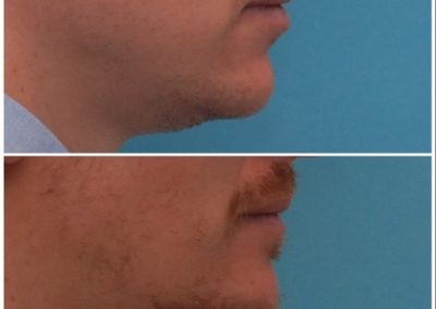 Chin Advancement / Sliding Genioplasty – 9