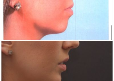 Implant Removal / Chin Advancement – 2