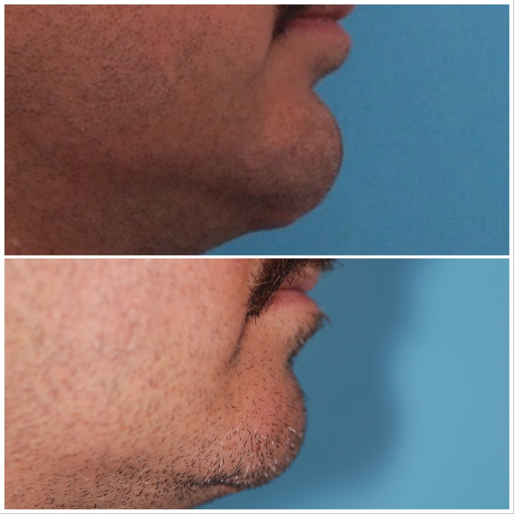Implant Removal - Chin Advancement - Sliding Genioplasty