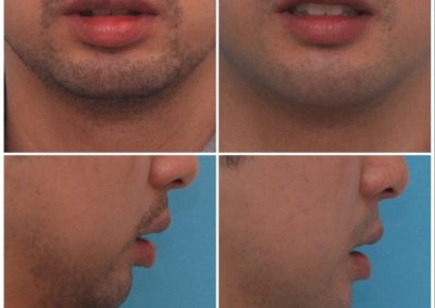 Chin Lengthening / Sliding Genioplasty