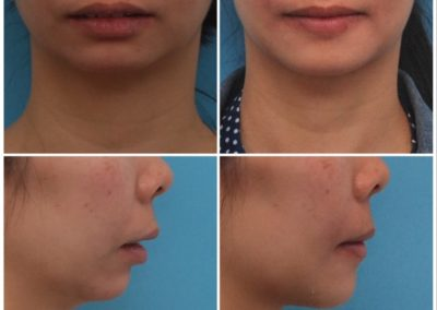 Chin Lengthening / Sliding Genioplasty – 3