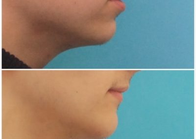 Chin Lengthening / Sliding Genioplasty – 6