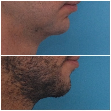 Chin Lengthening / Sliding Genioplasty