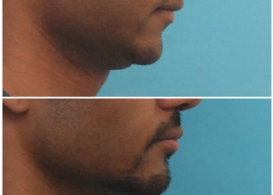 Chin Lengthening / Sliding Genioplasty – 7