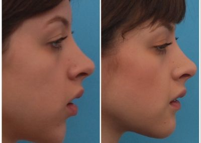 Implant Removal and Chin Advancement